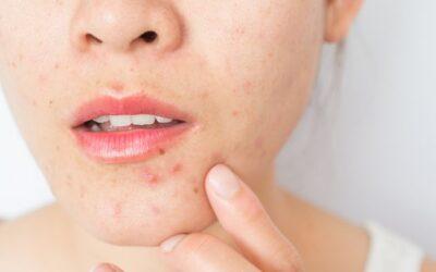 Factores que afectan el acné